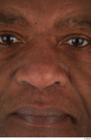 Photos of Jafaris Simon nose 0001.jpg